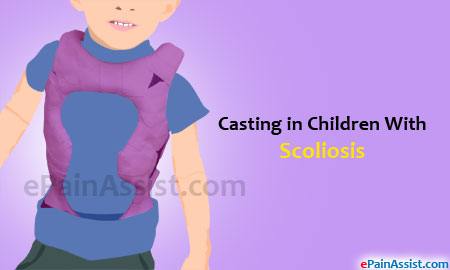 Casting in Children With Scoliosis