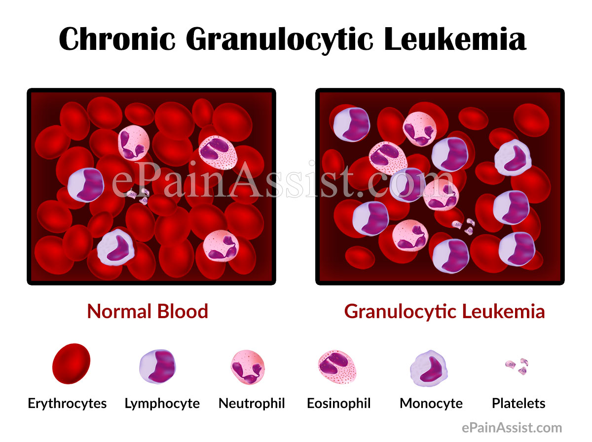 Chronic Granulocytic Leukemia