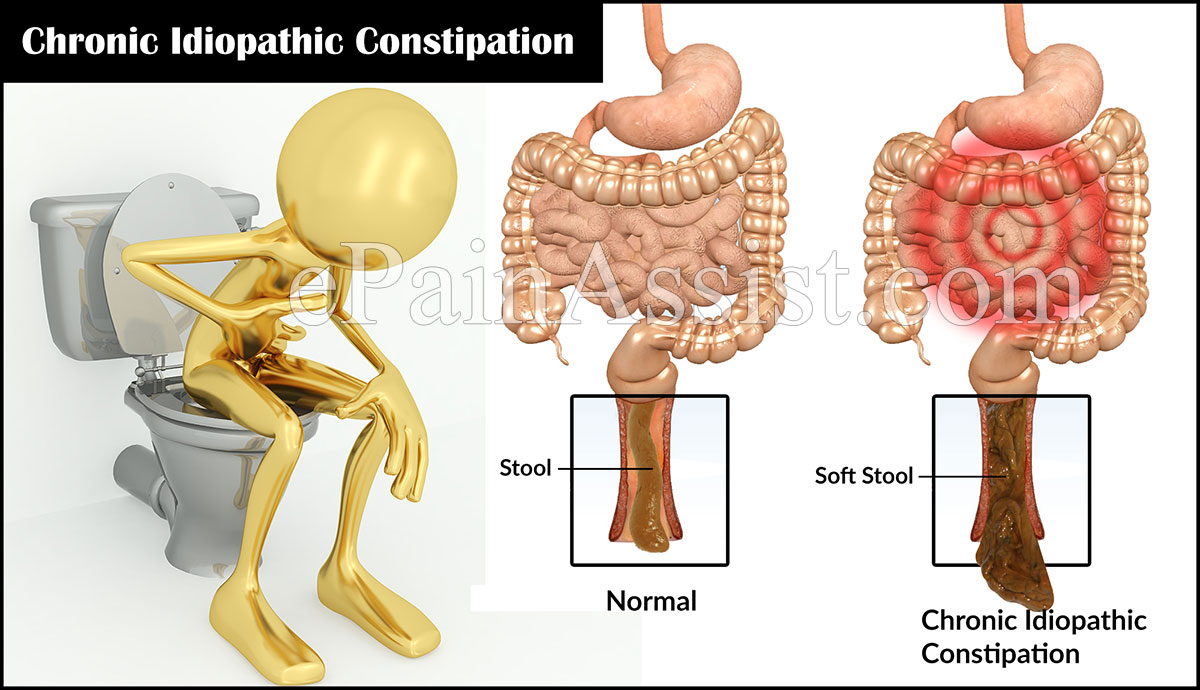 what is chronic idiopathic constipation and how is it treated?, Skeleton