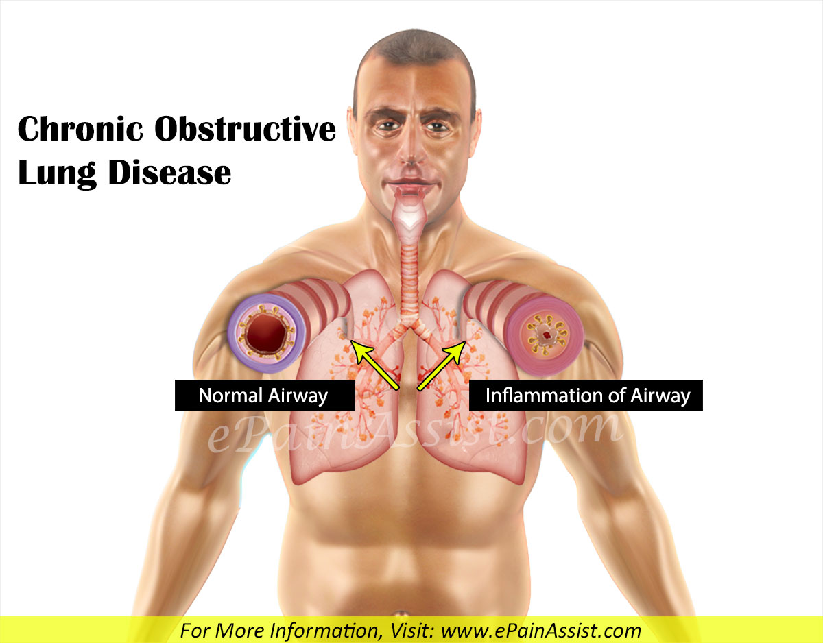 Chronic Obstructive Lung Disease