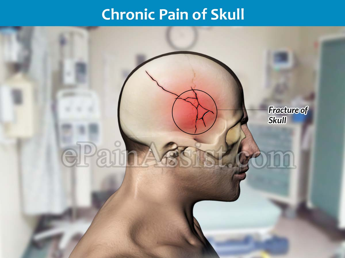 Chronic Pain of Skull Caused by Fracture of skull