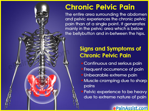 Signs and Symptoms of Chronic Pelvic Pain (CPP)