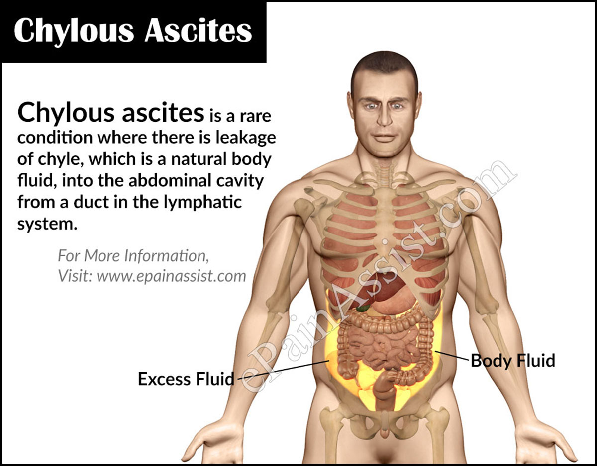 What Is Chylous Ascites And How Is It Treated