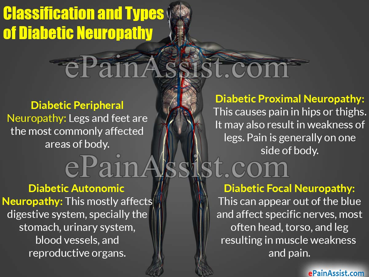 Classification and Types of Diabetic Neuropathy