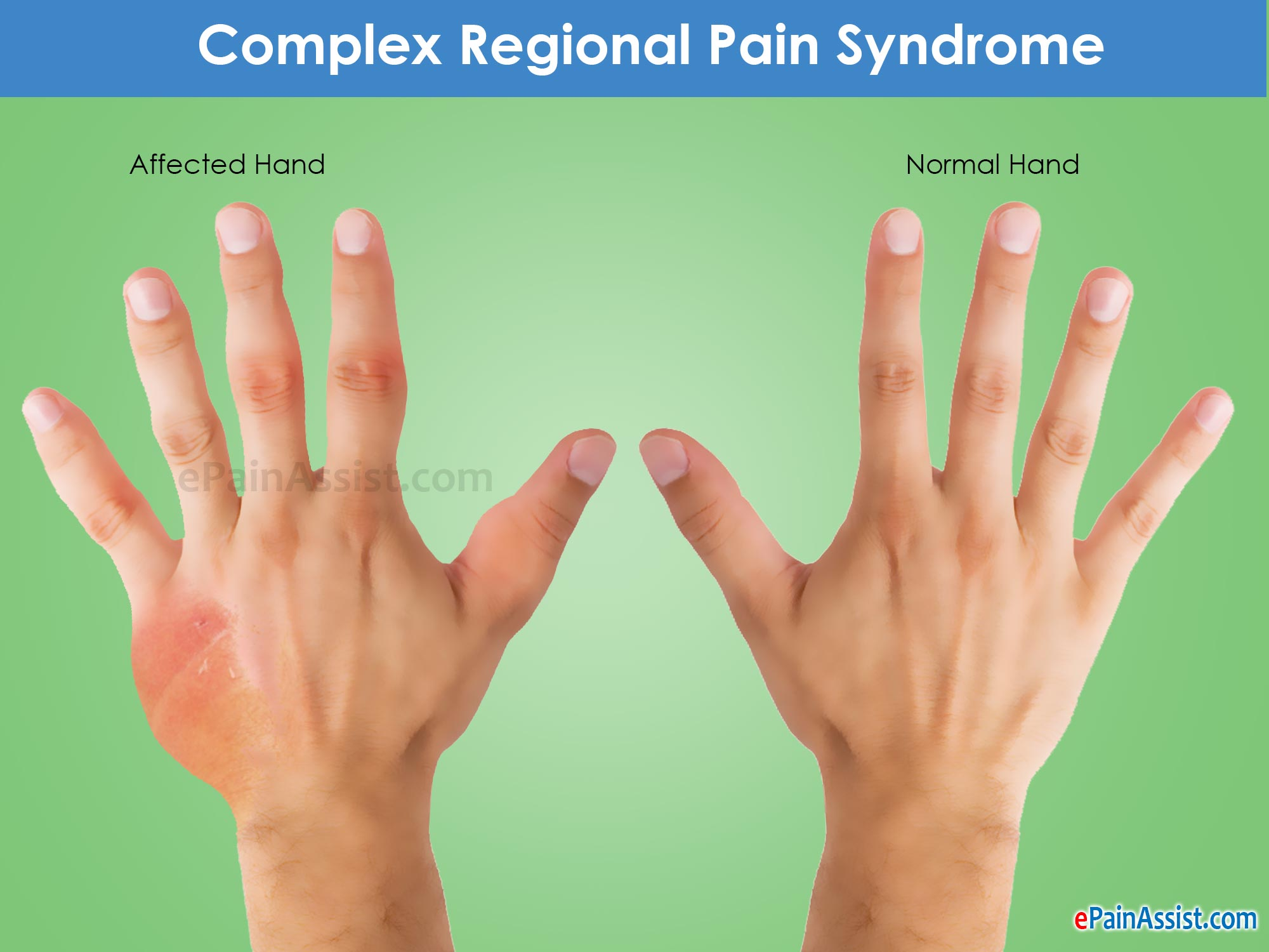 Complex Regional Pain Syndrome