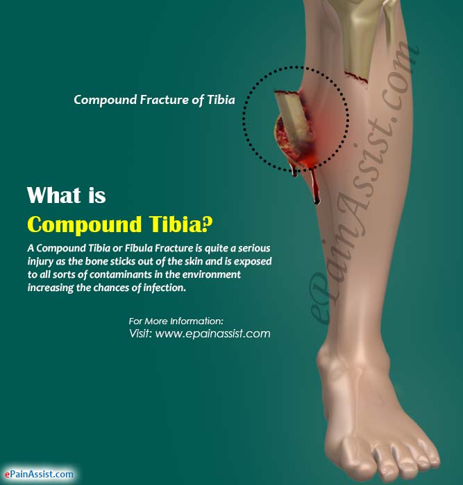 What is Compound Tibia or Fibula Fracture