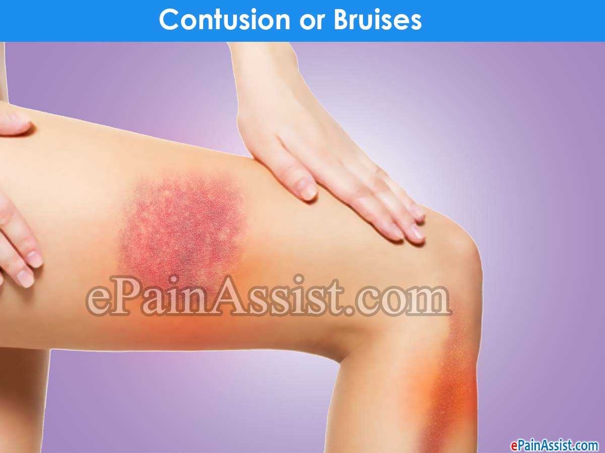 Contusion or bruises