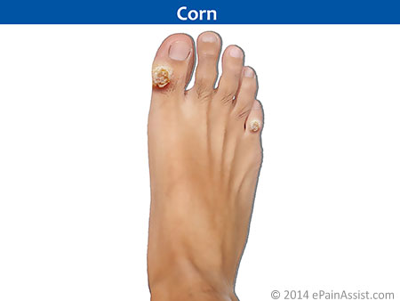 Foot Pain Due to Corn