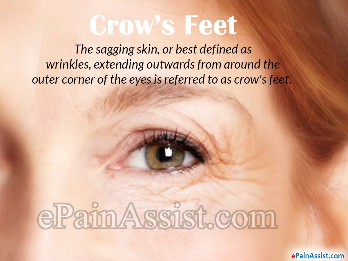 Crow S Feet How To Get Rid Of Wrinkles On The Outer
