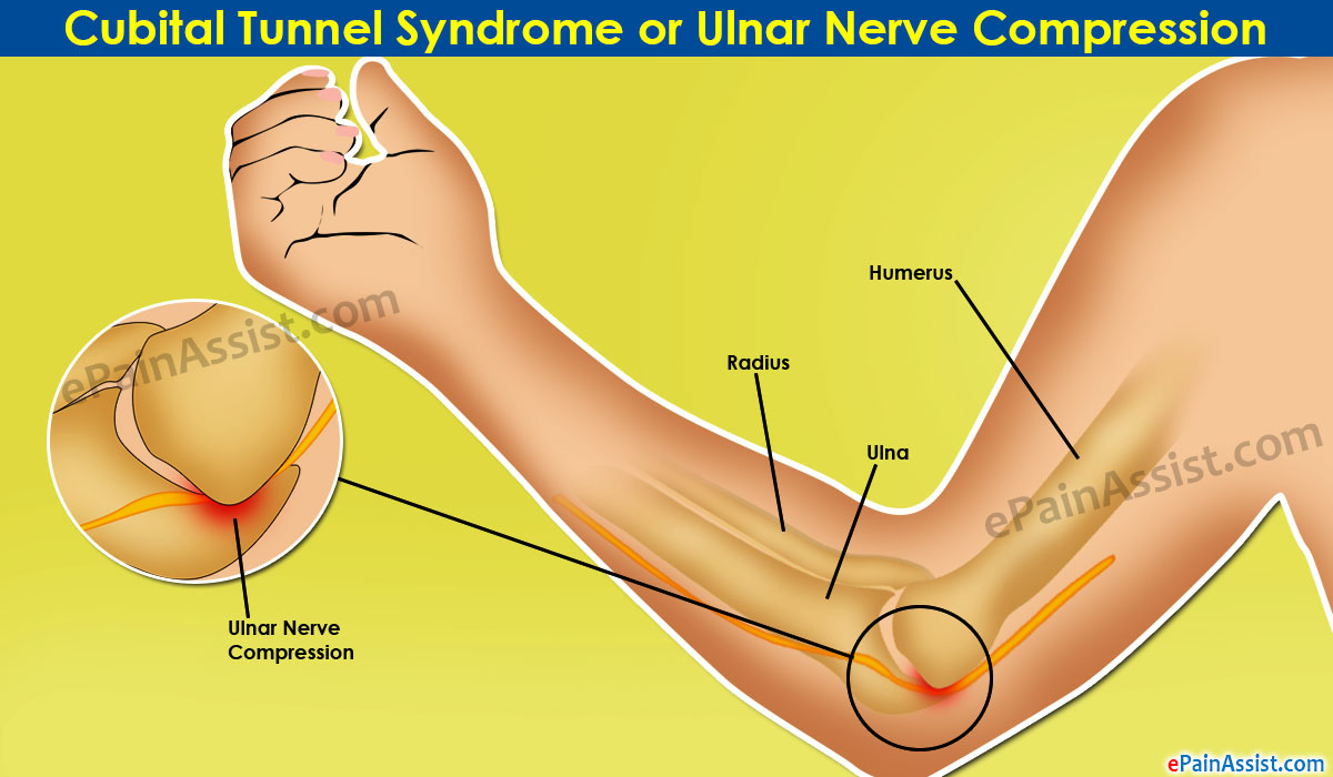 Cubital Tunnel Syndrome or Ulnar Nerve Compression|Symptoms|Causes ...
