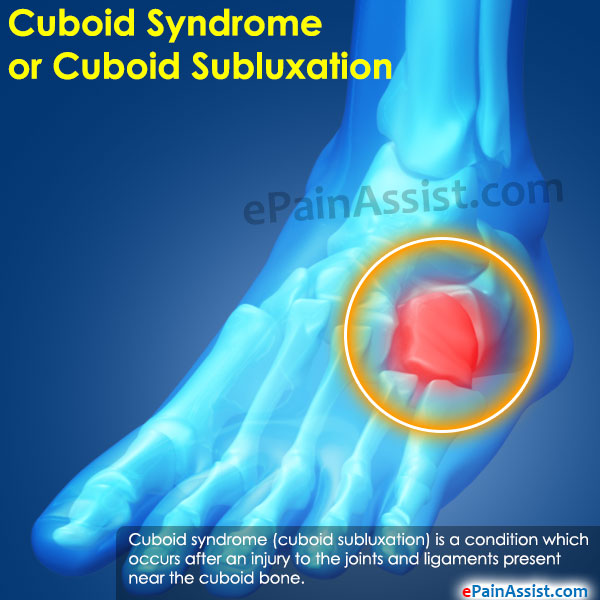 Cuboid Syndrome or Cuboid Subluxation