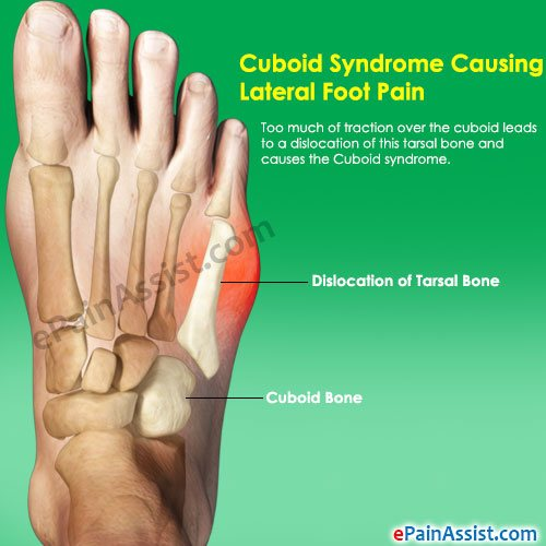vitamin c for gout prevention how to check uric acid level at home best foods for gout sufferers