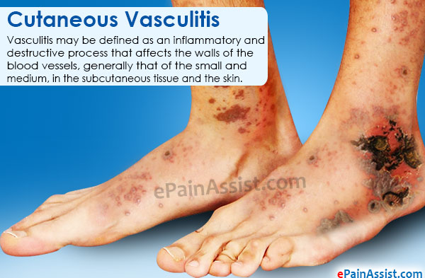 Cutaneous Vasculitis
