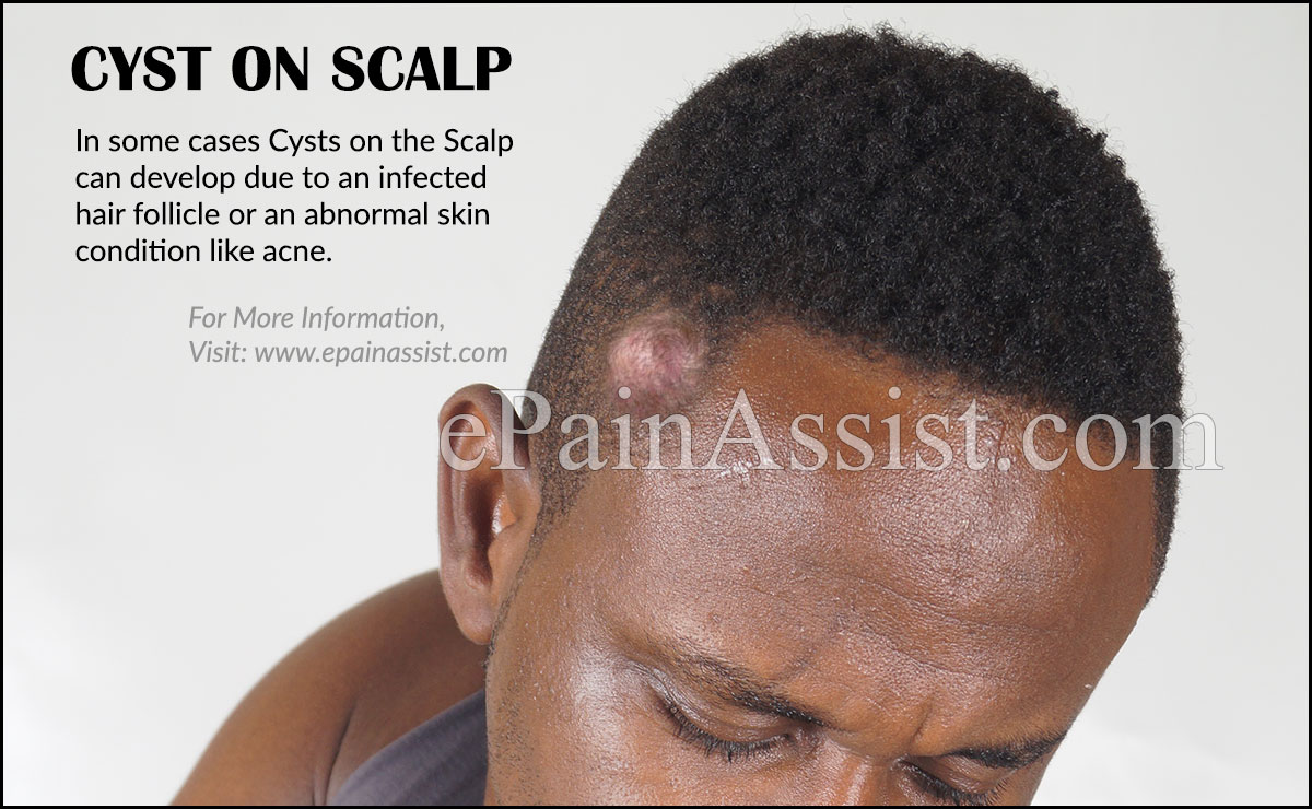 Cyst on Scalp