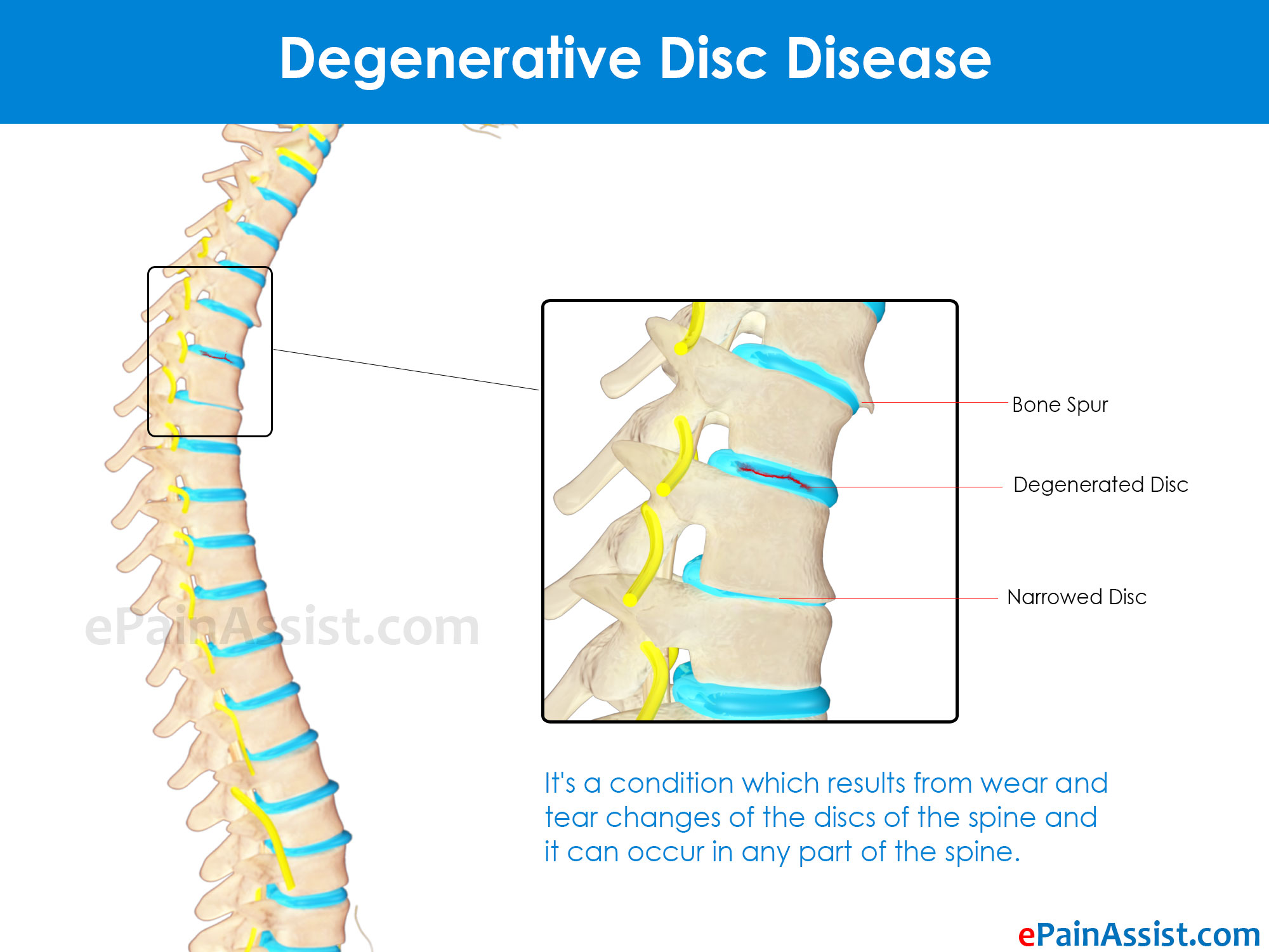 Types of Degenerative Disc Disease & Its Symptoms ...
