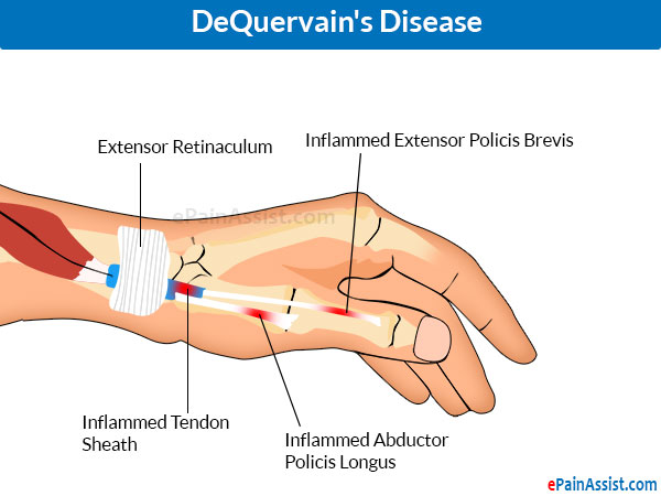 Wrist Joint Pain Caused Due To DeQuervain's Disease