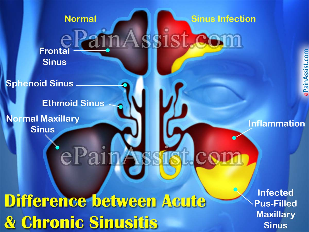 Difference between Acute & Chronic Sinusitis