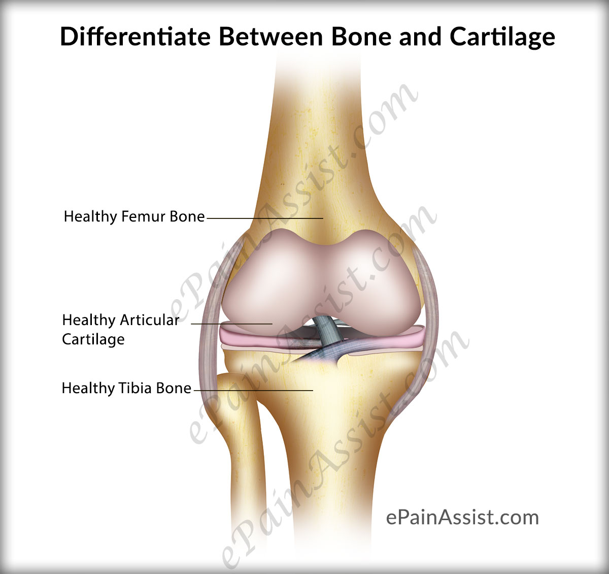 Differentiate Between Bone and Cartilage