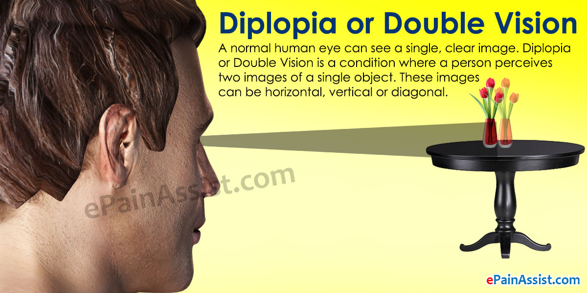 Diplopia or Double Vision