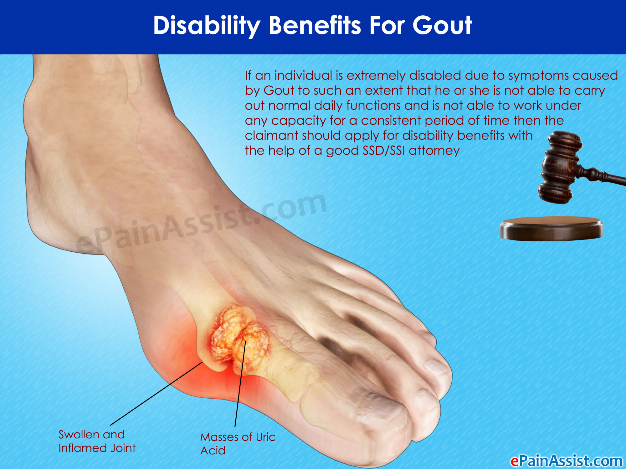 cherry pills good for gout uric acid crystal in synovial fluid naturally treatment for gout