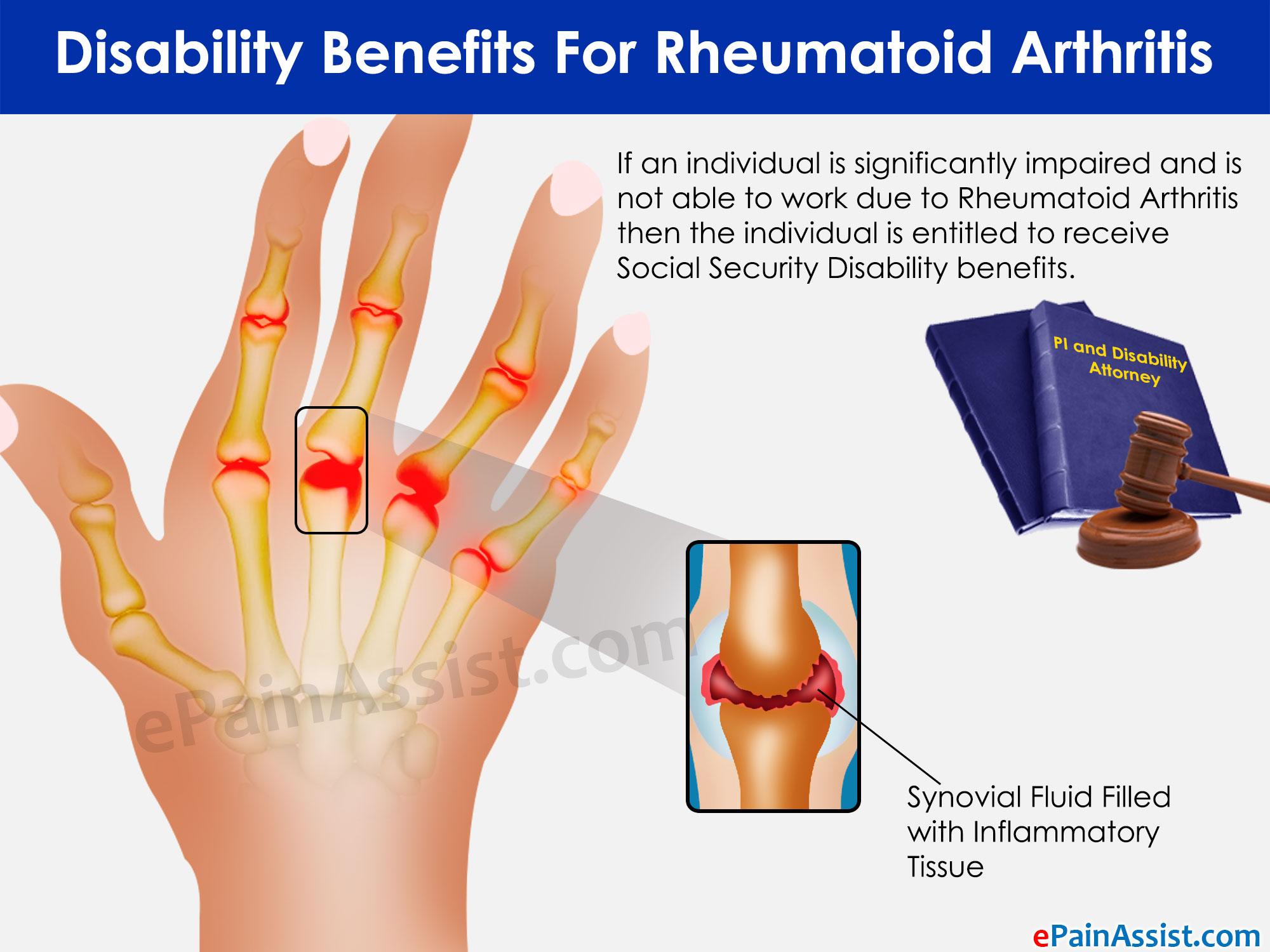 Rheumatoid Arthritis and You: What RA Can Do to Your Body Rheumatoid Arthritis and You: What RA Can Do to Your Body new pictures