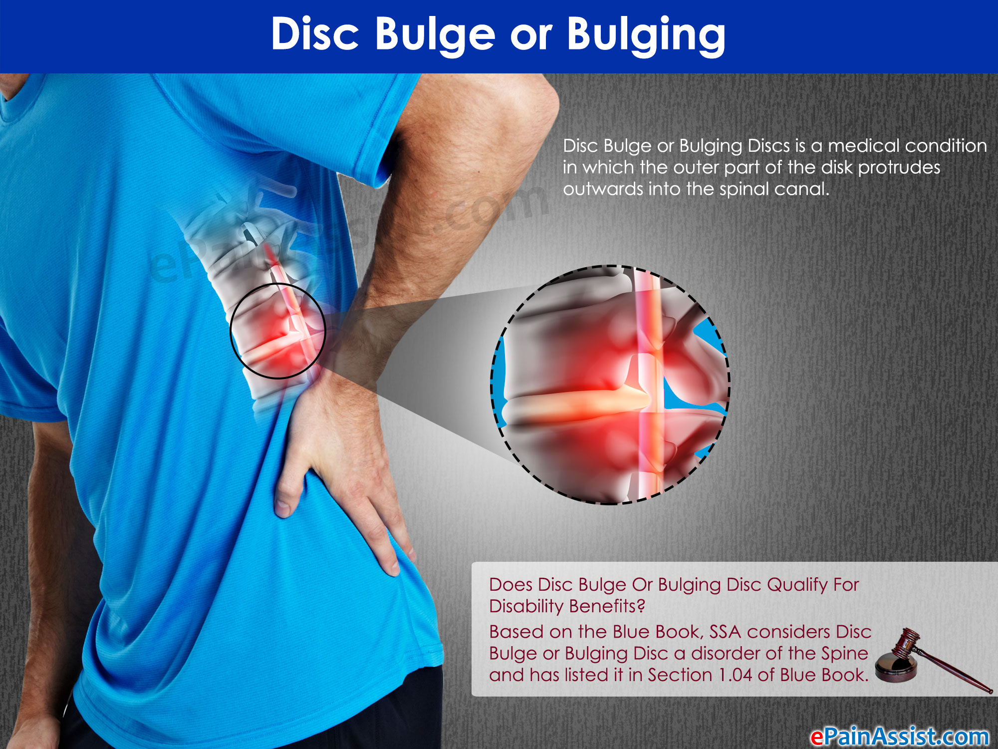 Disc Bulge Or Bulging Disc