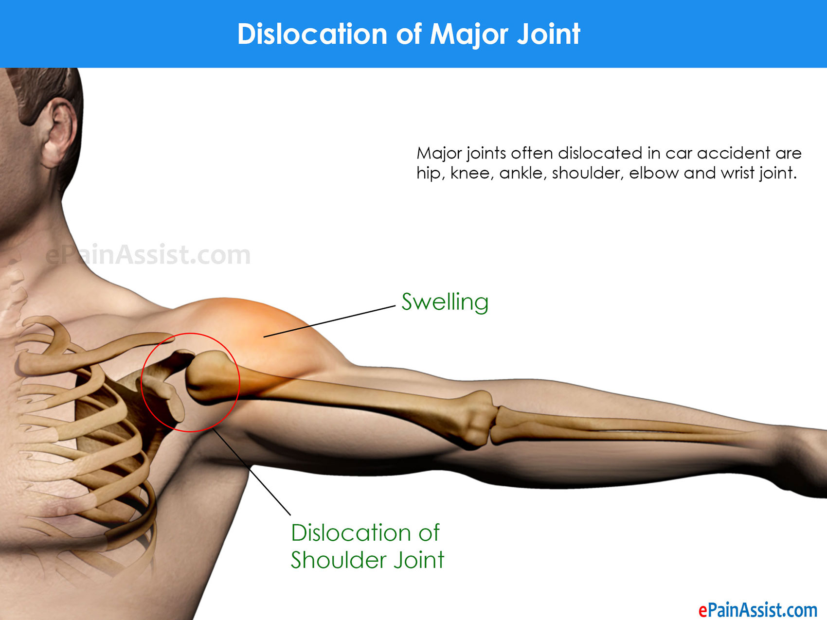 Dislocation of Major Joint