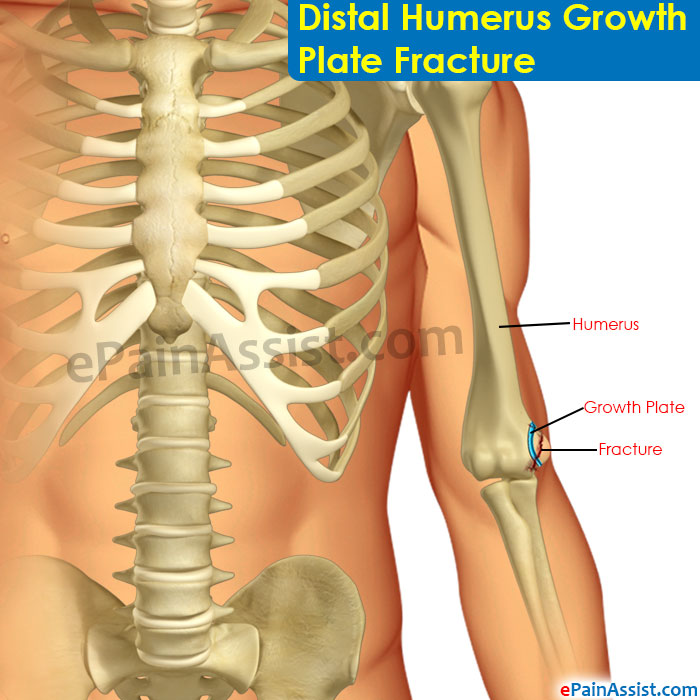 Distal Humerus Growth Plate Fracturesymptomscausestreatment