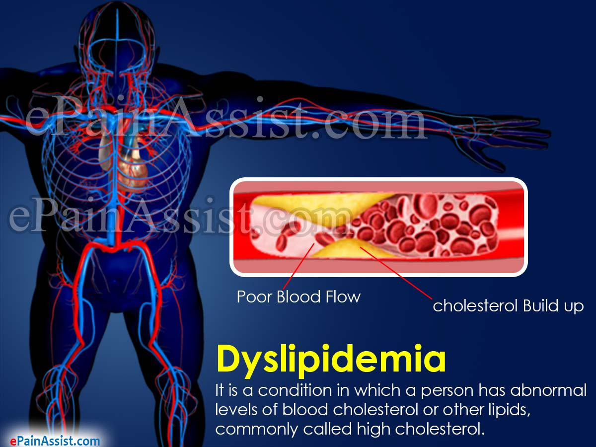 Dyslipidemia (High Cholesterol)
