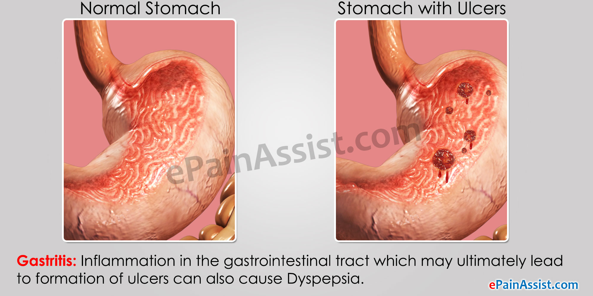 how do steroids cause liver disease