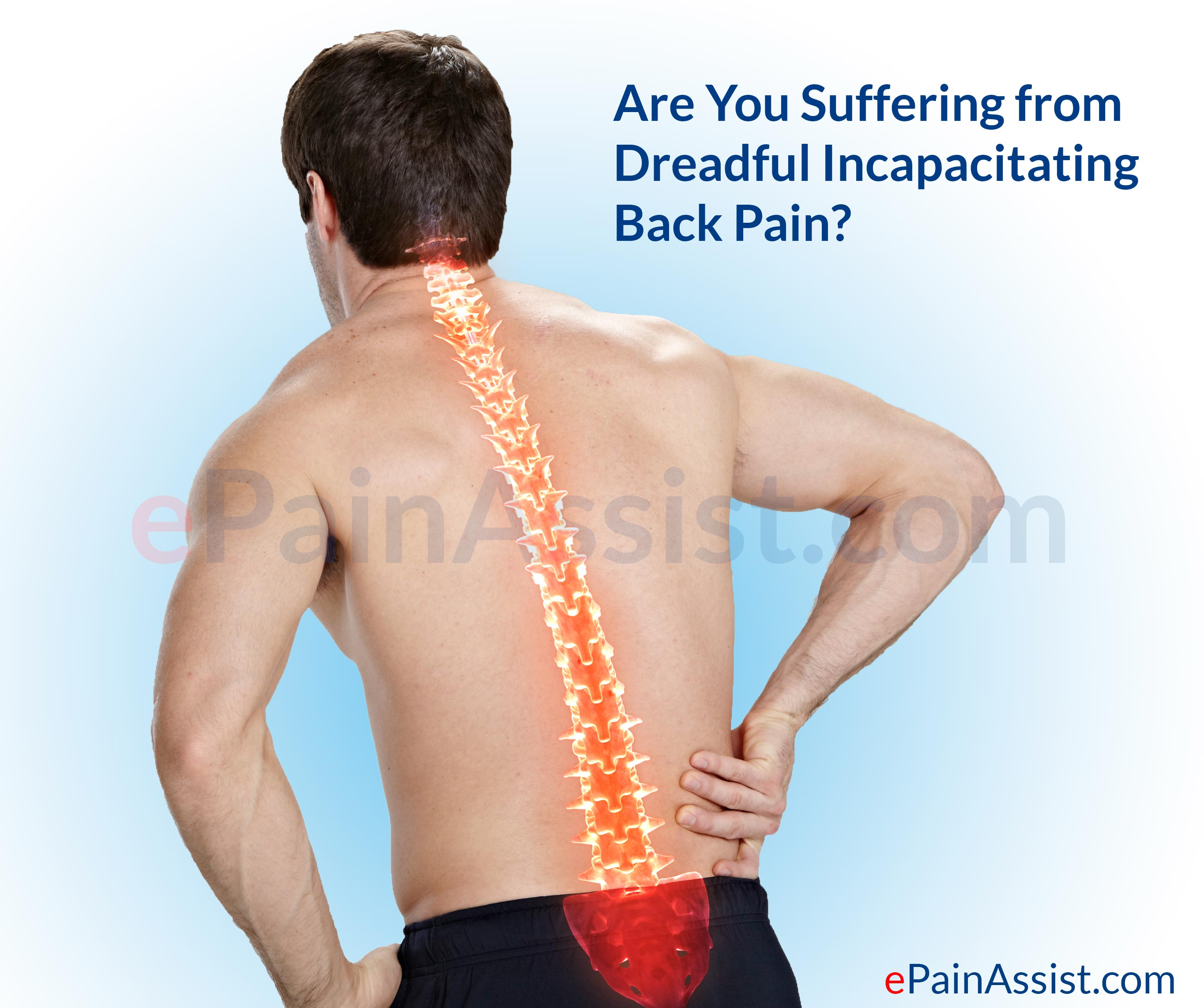 Back Pain Due To Failed Back Syndrome