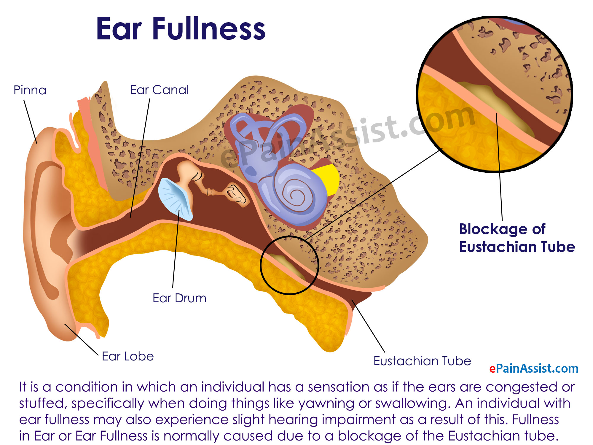 Ear Fullness
