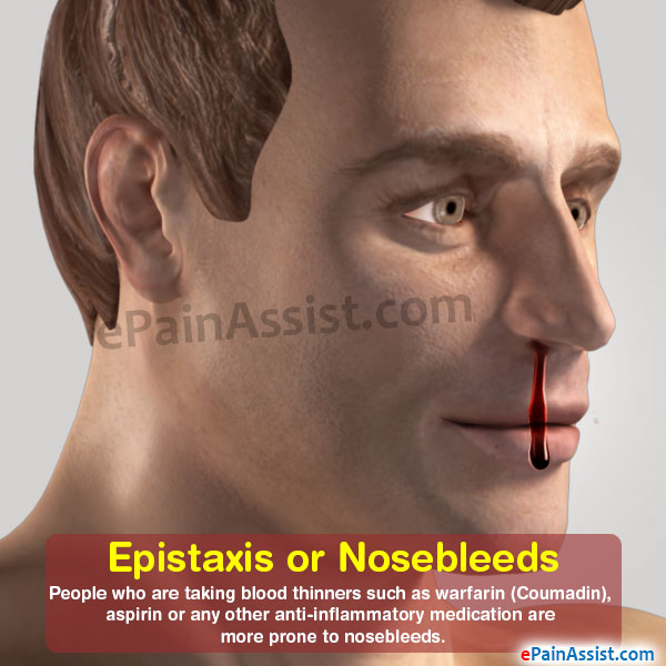 Epistaxis or Nosebleed|Symptoms|Causes|Treatment|Prevention