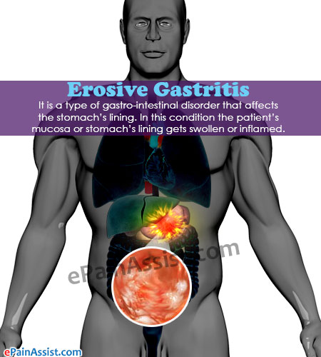 Erosive Gastritis|Causes|Symptoms|Treatment|Home Remedies|Diet