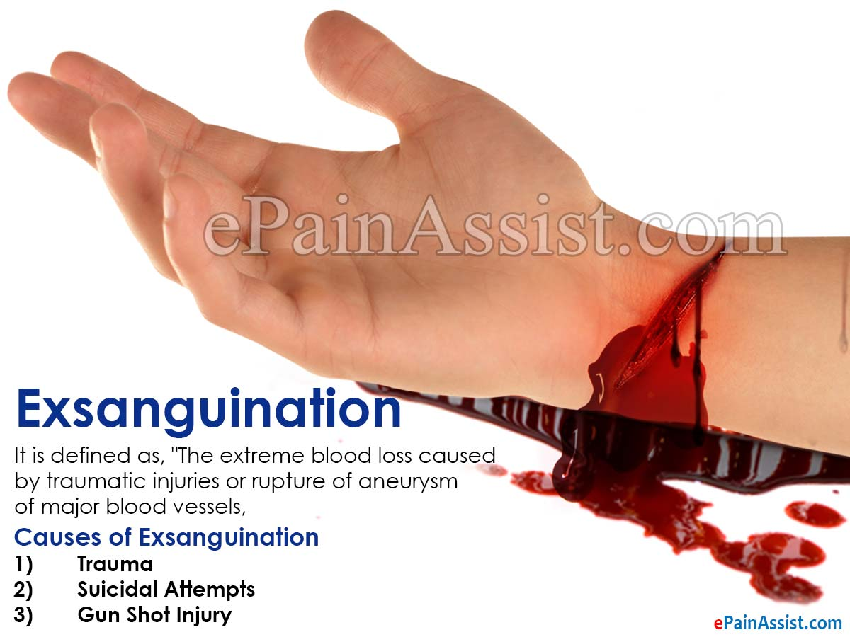 Causes of Exsanguination
