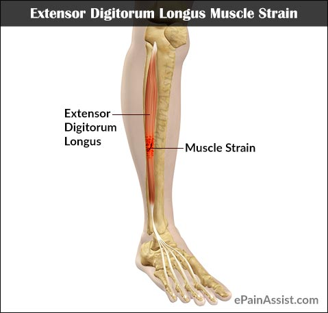 digitorum longus muscle strain, Human Body