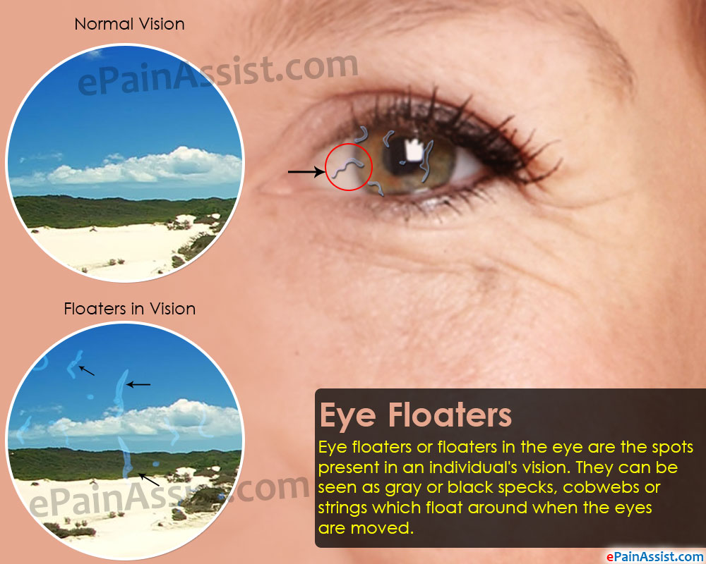 Symptoms of Eye Floaters