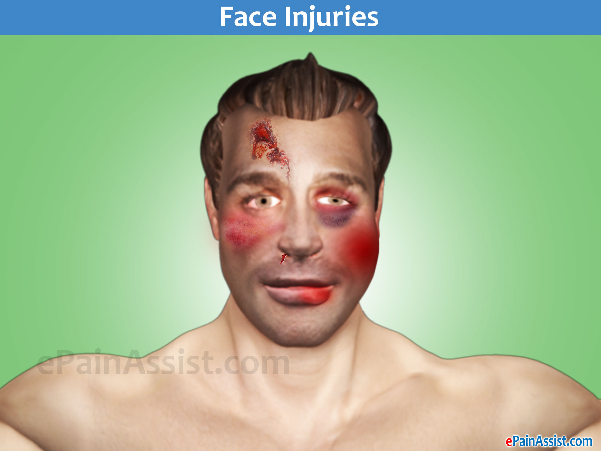 Face Injury Following MVA