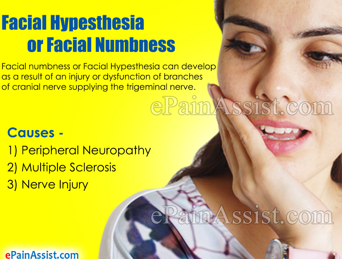 Facial Hypesthesia or Facial Numbness