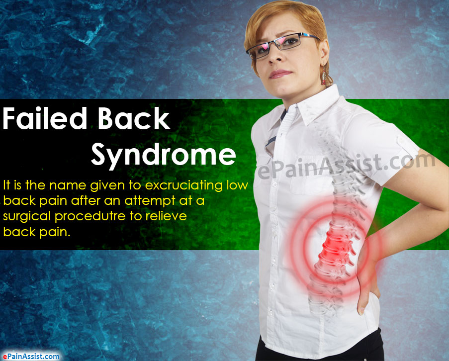 Failed Back Syndrome