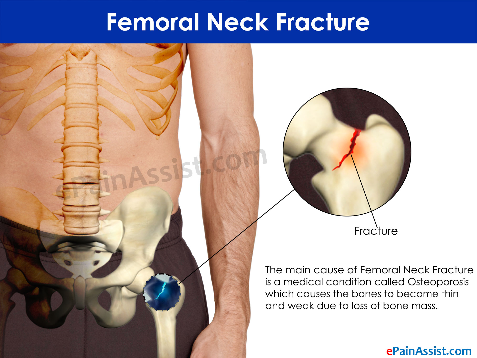 Fracture of the femoral neck in old age is a verdict