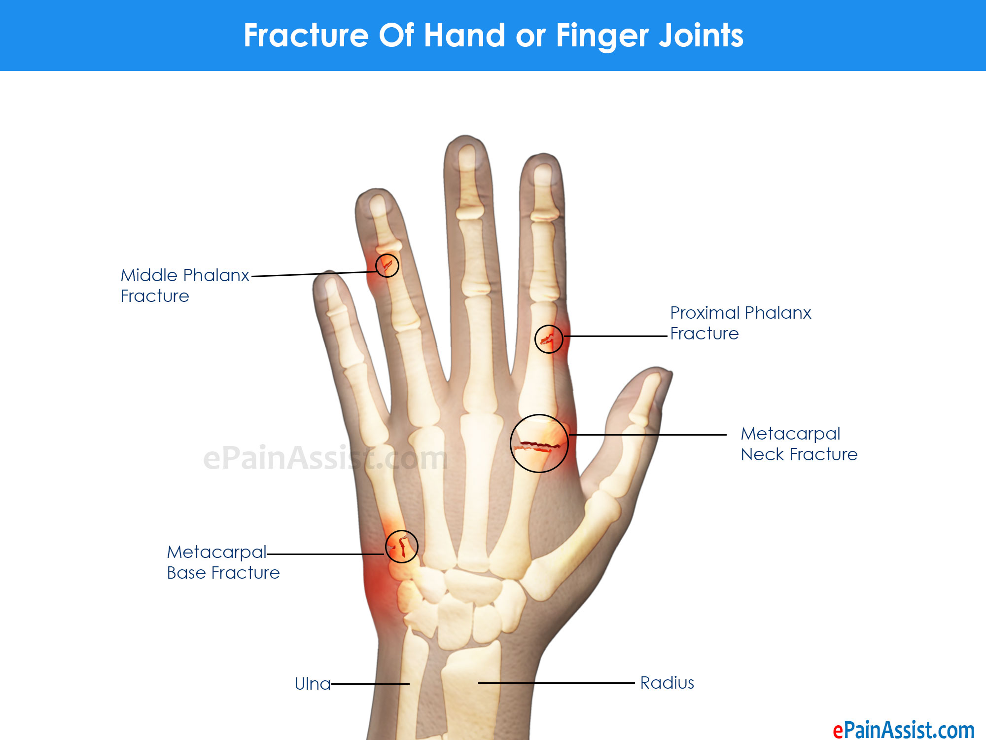 Fracture Of Hand or Finger Joints