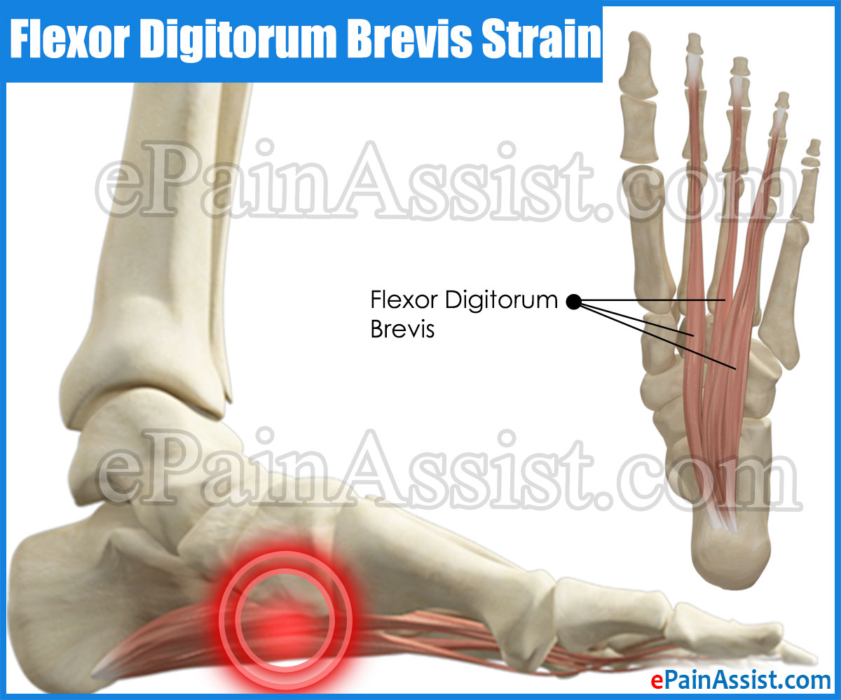 Flexor Digitorum Brevis Strain