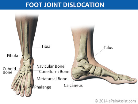 Foot Joint Dislocation: Types, Symptoms, Signs & Its Diagnosis