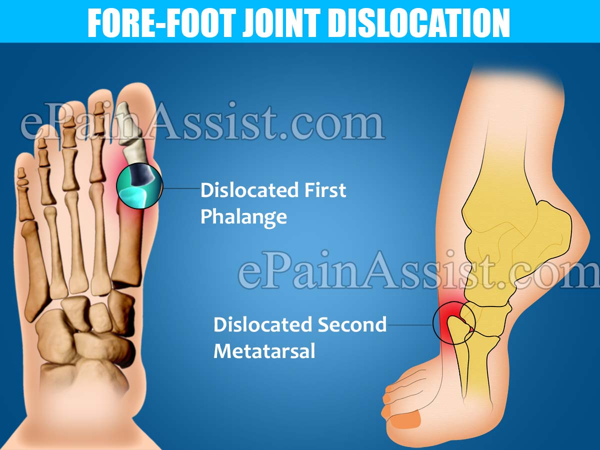 Fore-Foot Joint Dislocation