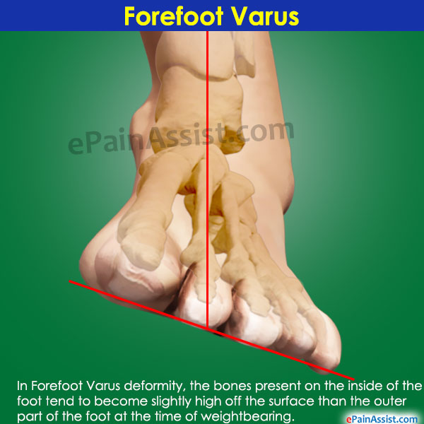 Forefoot Varus Correction Complications Causes