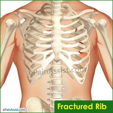 Pain Under The Left Rib Cage – Symptoms, Causes, And Treatments