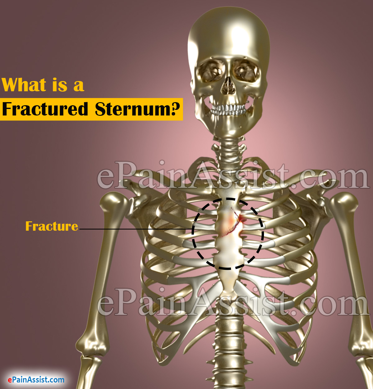 What is a Fractured Sternum