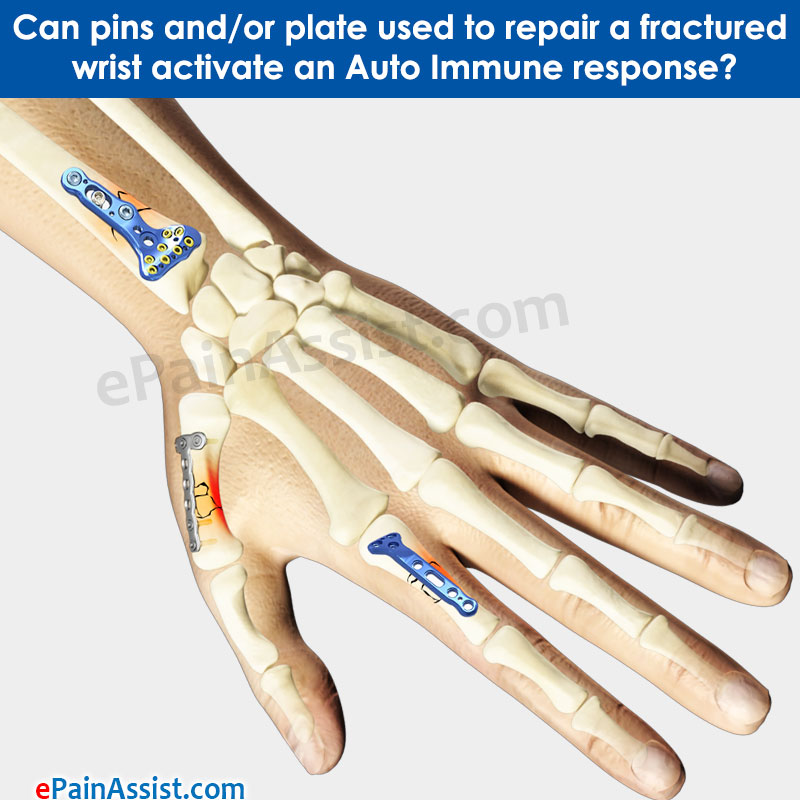 pins and/or plate used to repair a fractured wrist