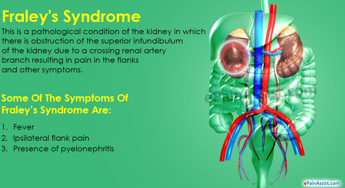 Fraley's Syndrome